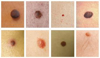 papilloma virus e macchie sulla pelle este posibil să se îndepărteze papilomul roșu
